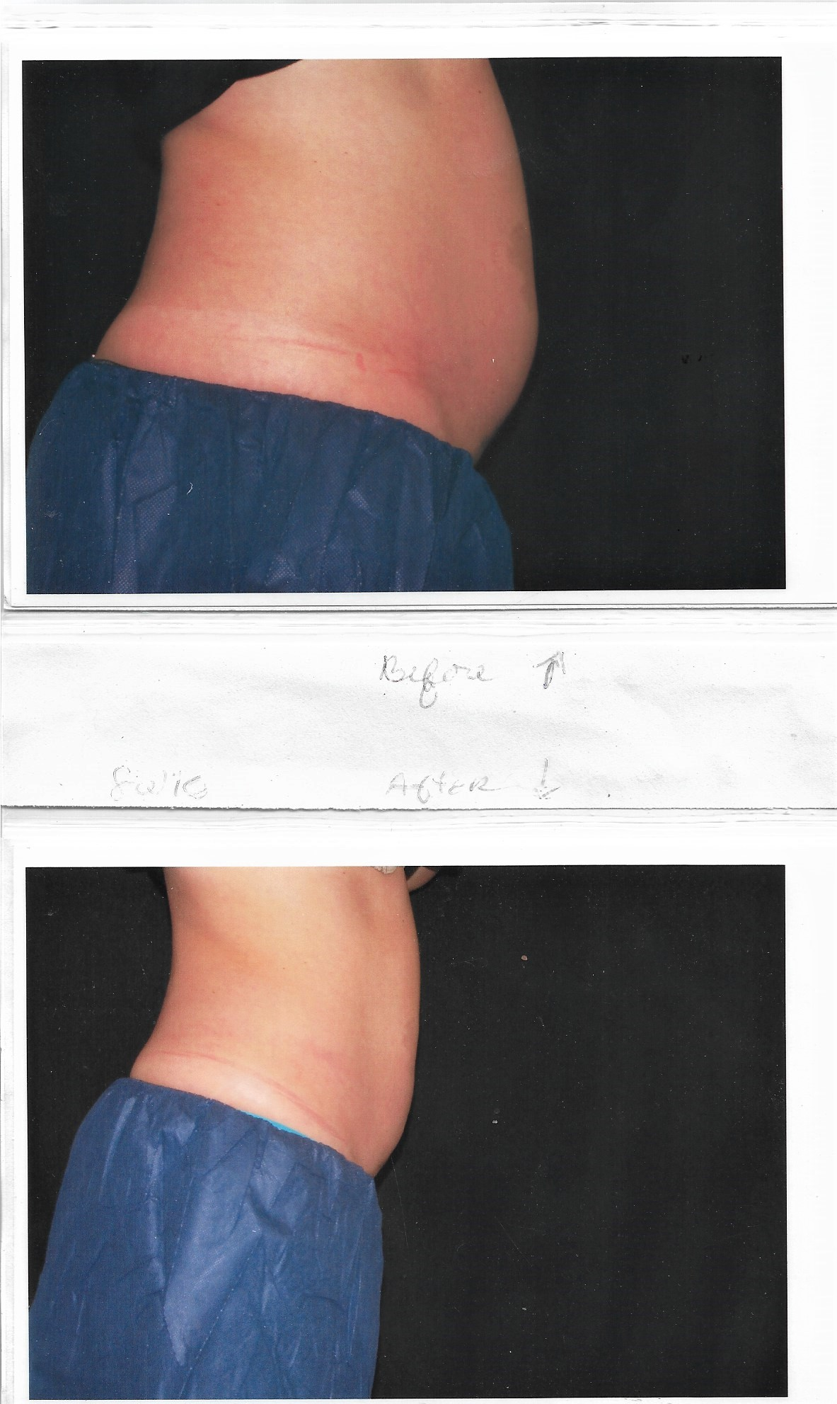 before after coolsculpting melindas med